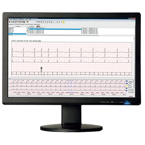 SmartHolter24 Holter-EKG-Gerät Günstig Bei Praxisdienst